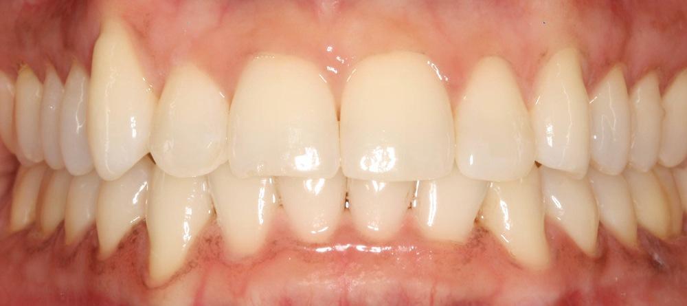 dunrobin implants dental kinburn