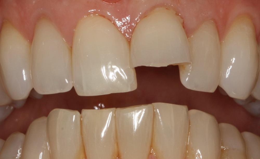dunrobin dental implants kinburn