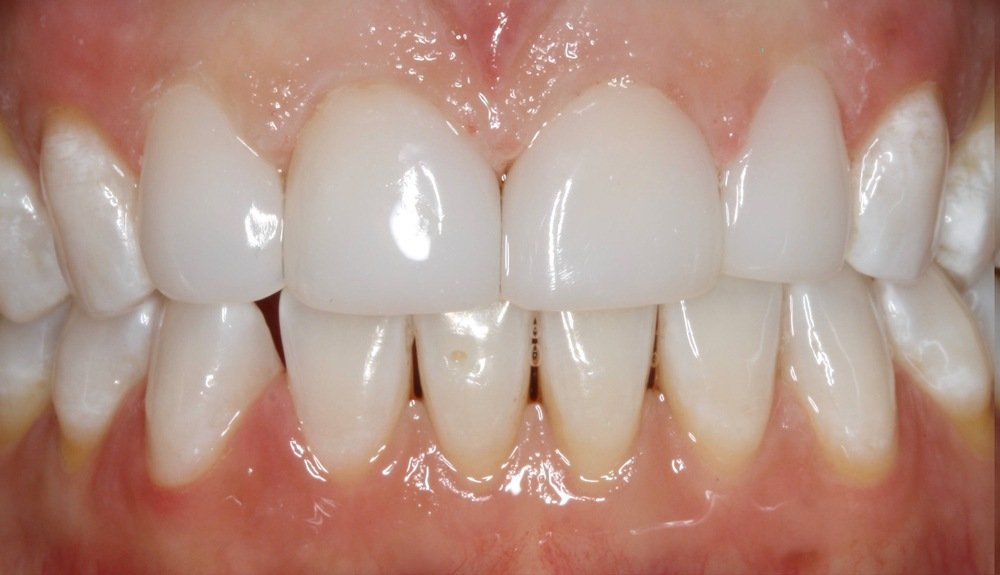 carp dental clinic goulborn