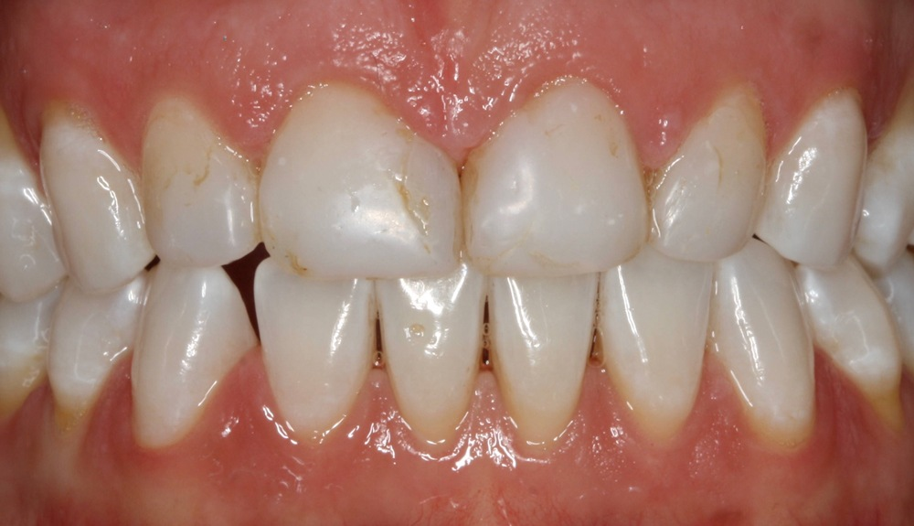 carp clinic dental goulborn