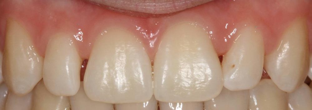 stittsville patient dentist new kanata