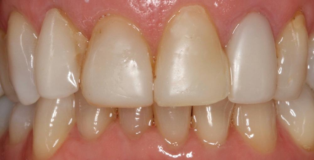 stittsville new patient dentist kanata