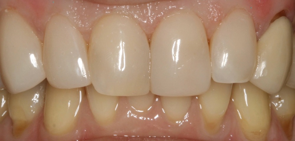 stittsville new dentist patient kanata