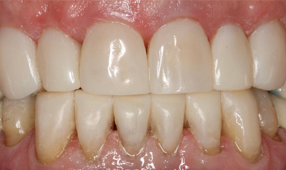 stittsville implants dental kanata