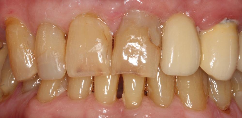 stittsville dentist new patient kanata