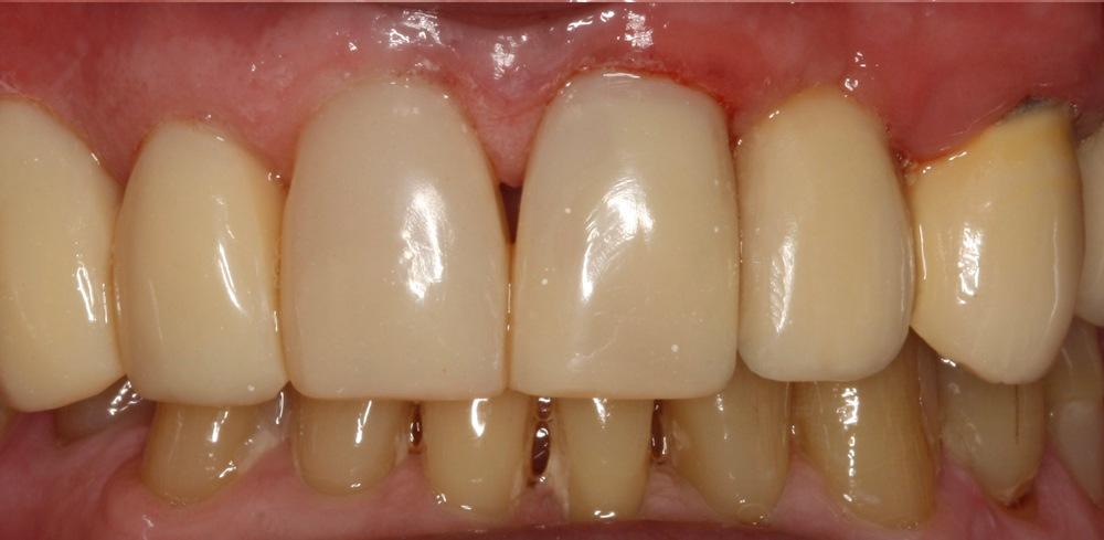 stittsville dentist patient new kanata