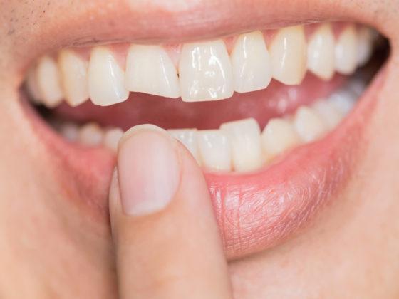Kanata broken tooth