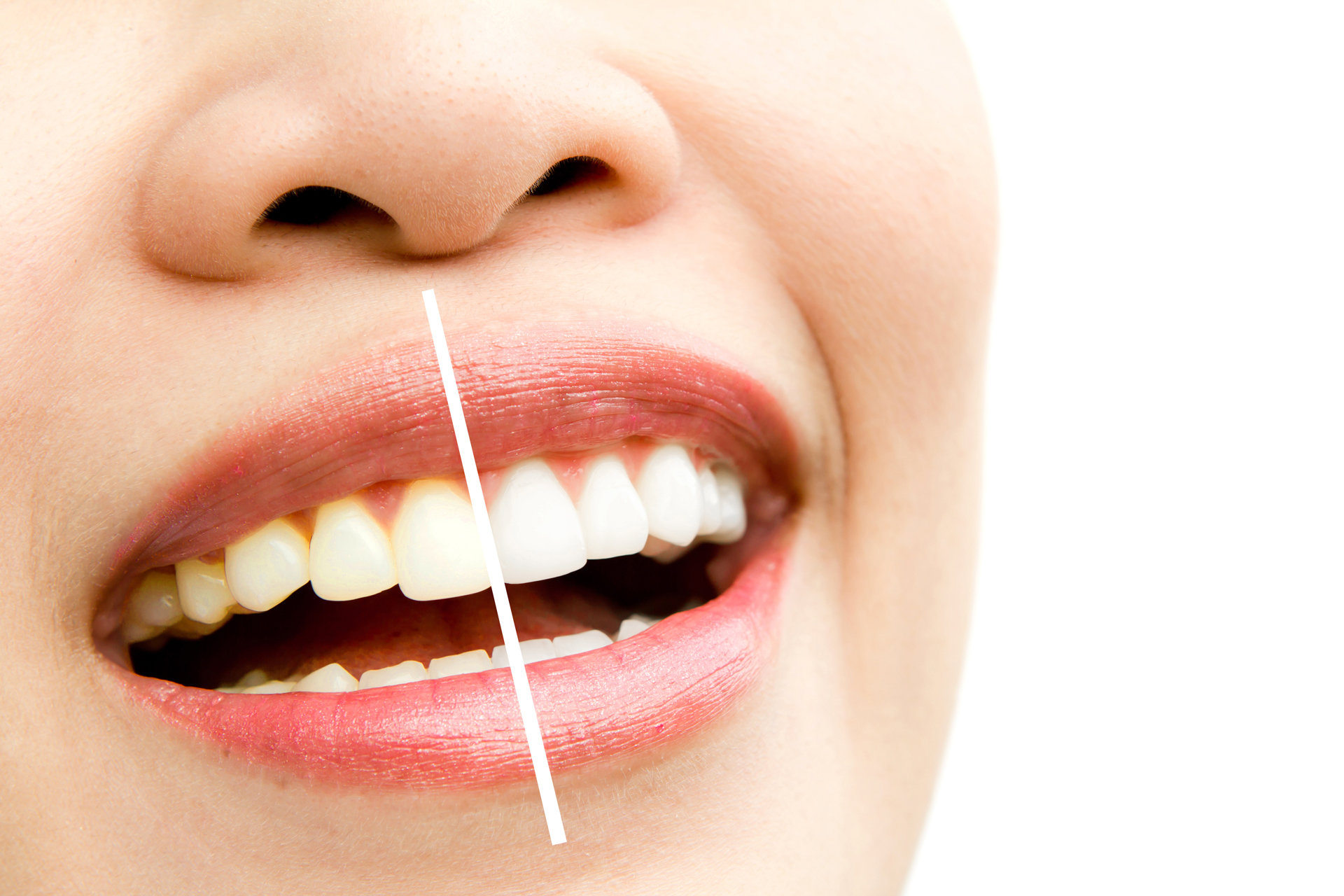 Stittsville teeth whitening Kanata