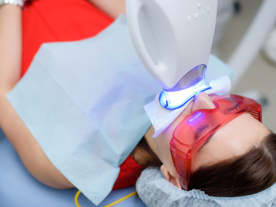 Kanata Teeth whitening Stittsville