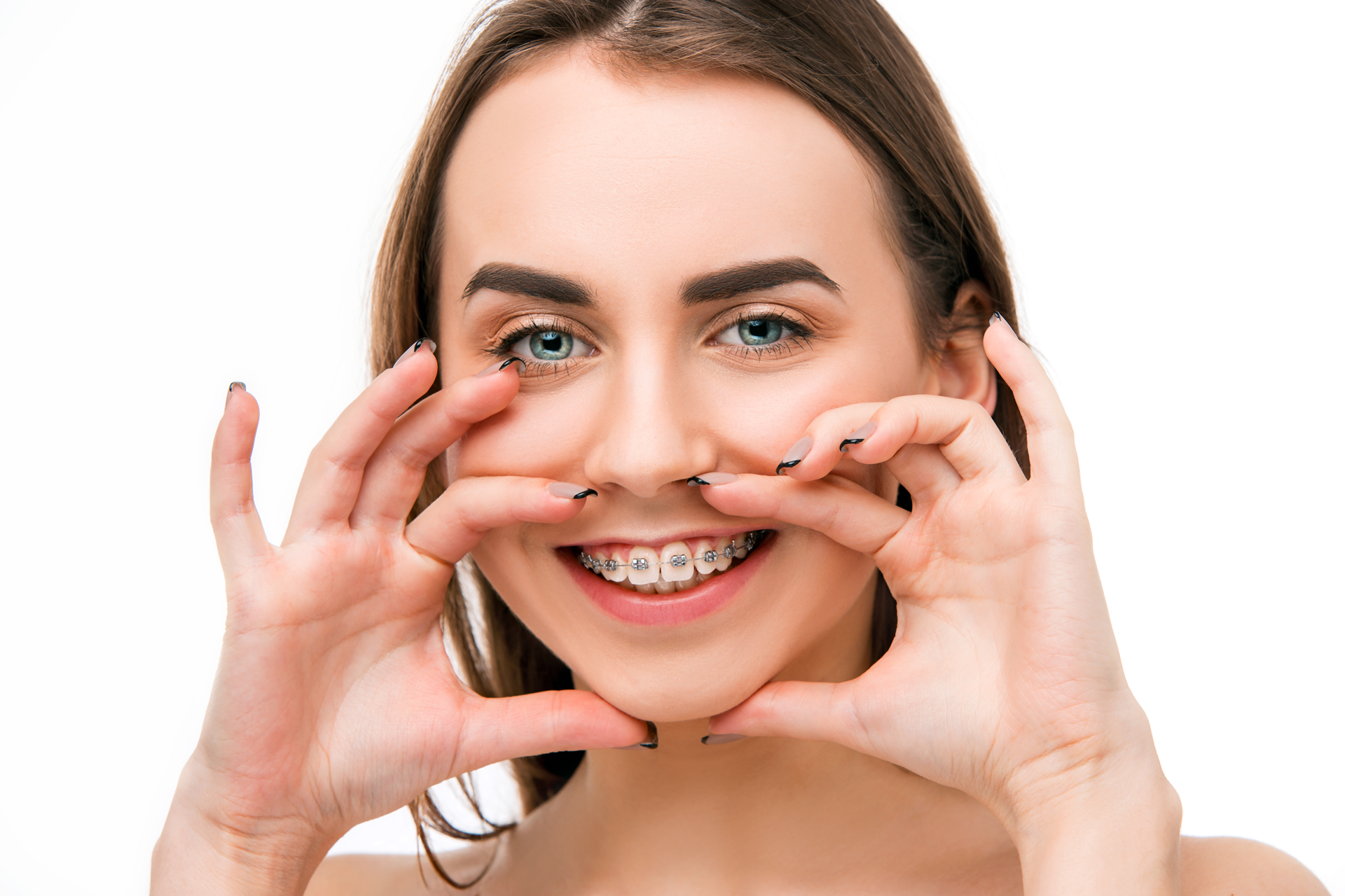 Dunrobin Dentists Carp - Brushing and Oral Hygiene with Brackets Braces