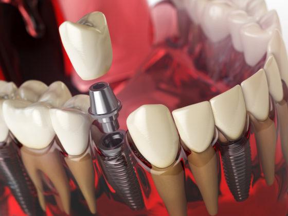 Dentists Carleton Place Dental Implants