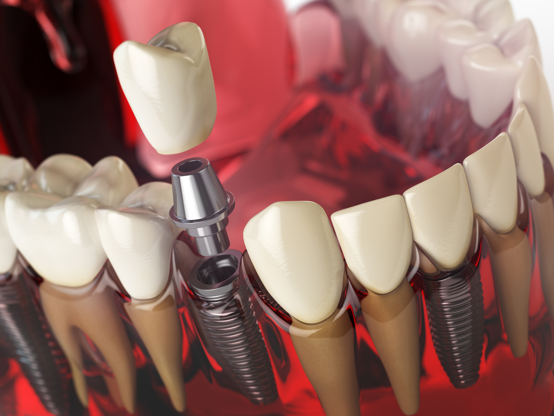 Dentists Carleton Place Dental Implants