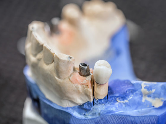 ALMONTE IMPLANTS CARLETON PLACE: Benefits and risks of Immediate Loading Implants