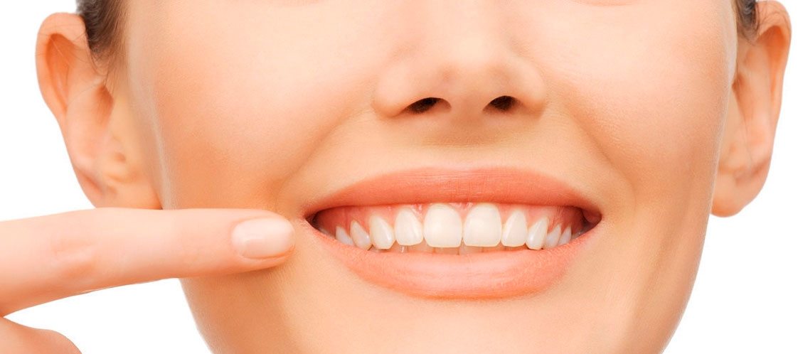 ALMONTE DENTISTS: After Orthodontics (Braces), Do Teeth Return to their Misaligned Position?