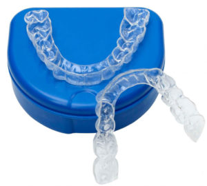 Retainers serve to keep your teeth straight once you have completed your orthodontic treatment - CARLETON PLACE DENTISTS ALMONTE