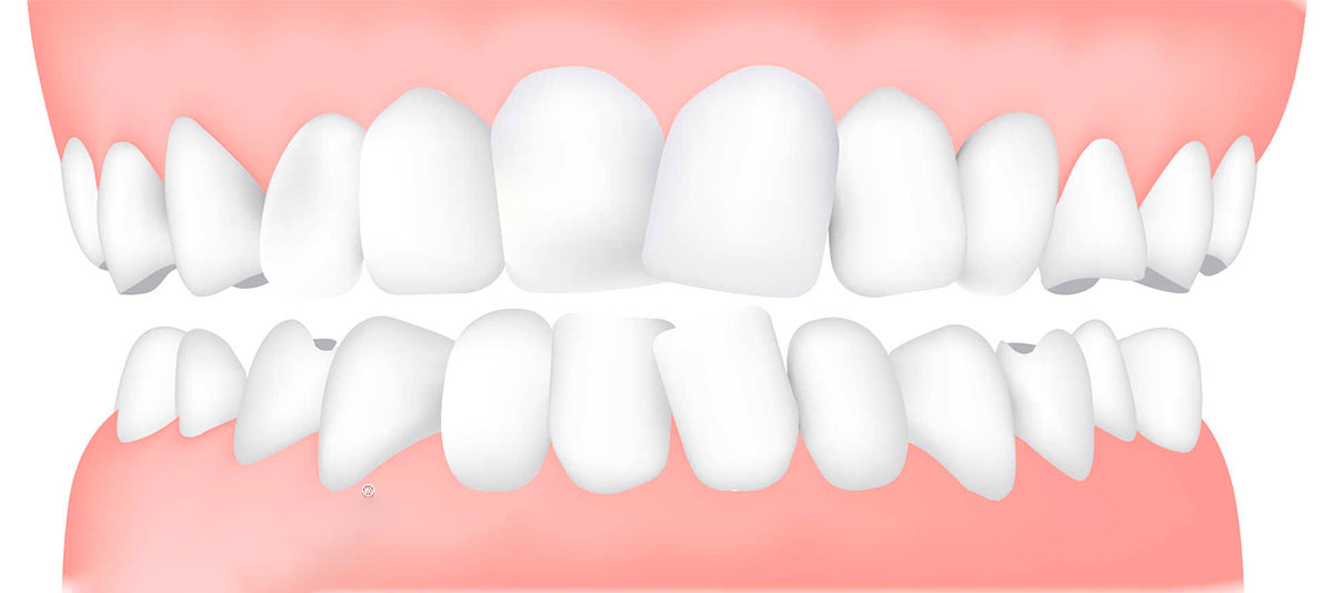 What are retainers and how do they work? - CARLETON PLACE DENTISTS ALMONTE
