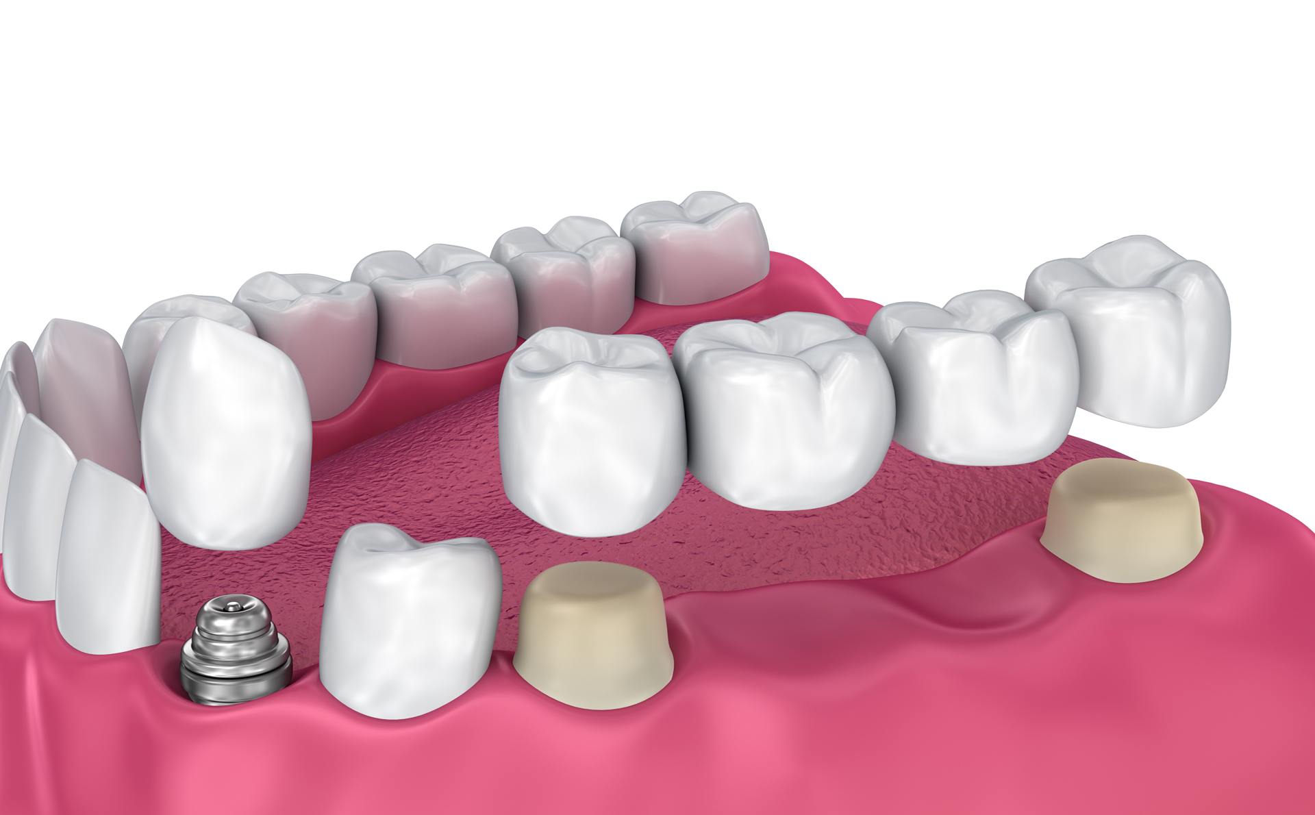 Dental Implants vs Dental Bridges