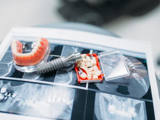 carleton place dentures dental protheses almonte