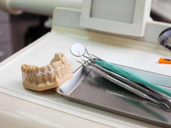kanata implants carleton place bone grafts treatment