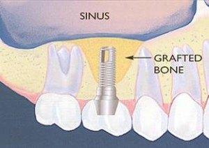 Kanata Implants Dunrobin