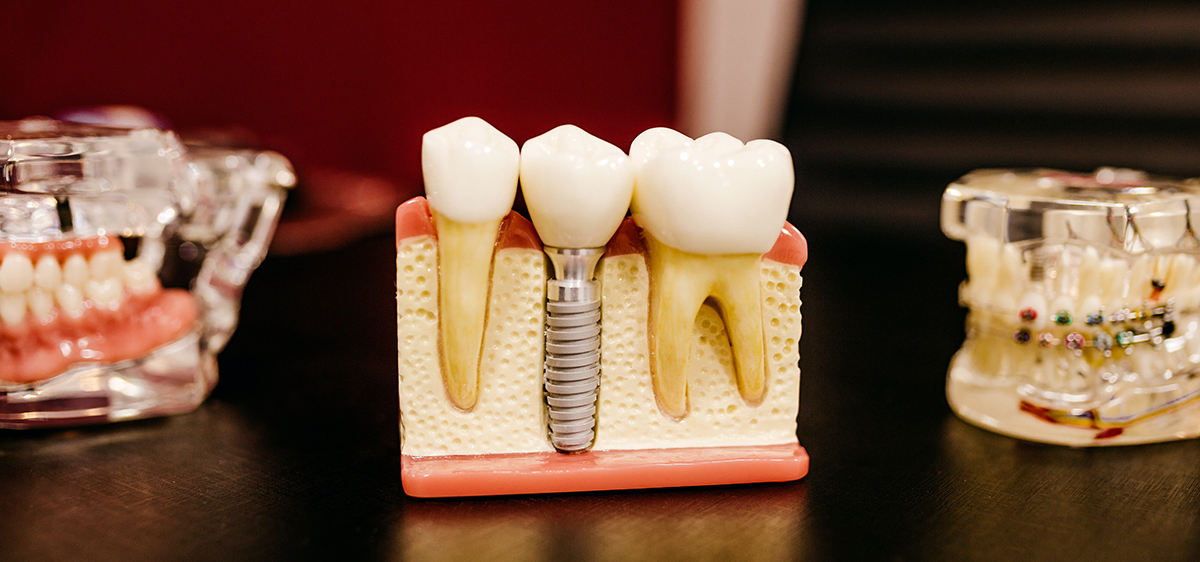 dental implants tooth replacement option