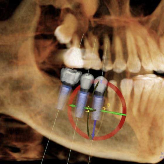 3D CONE BEAM CT SCANNER