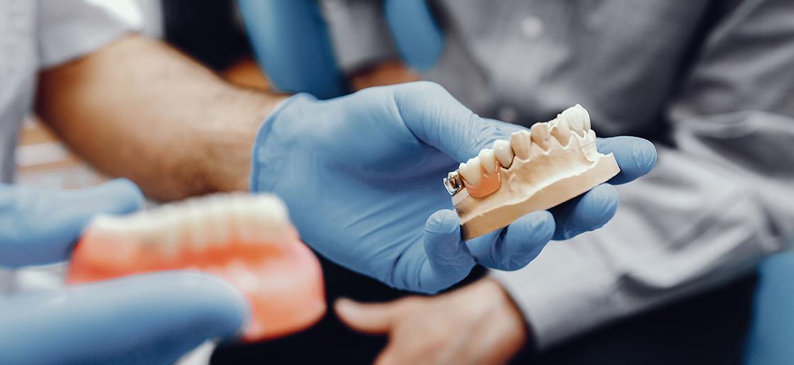 Dental implants in Dunrobin