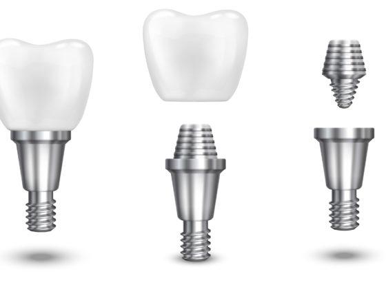 Implants Dental in Dunrobin
