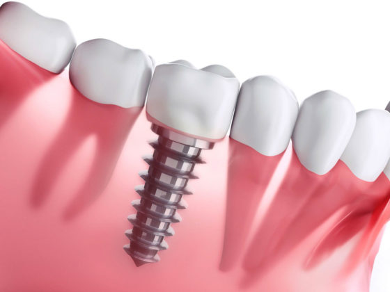 Dental implants in Dunrobin