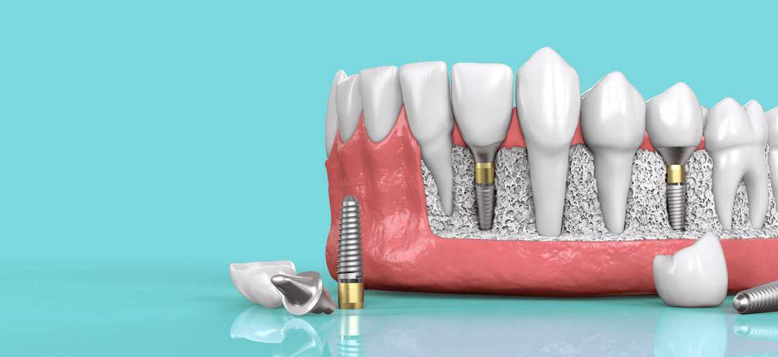 Dental implants in Kanata