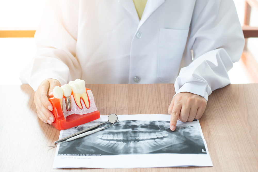 ARE DENTAL IMPLANTS PAINFUL