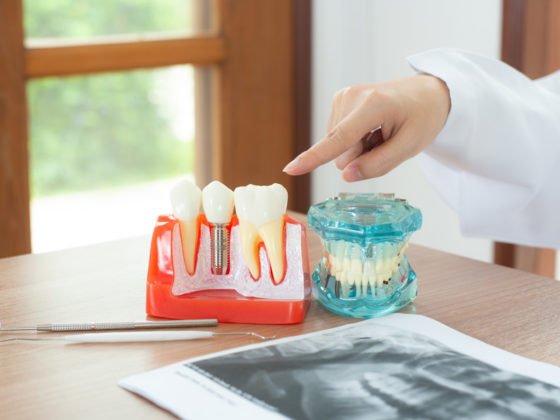 ARE DENTAL IMPLANTS COVERED BY MY PLAN?