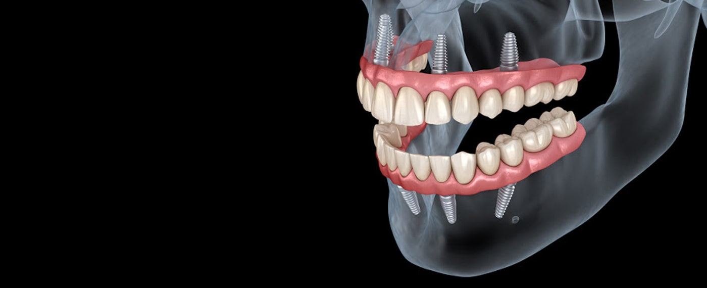 Best solution for missing teeth - dental implants